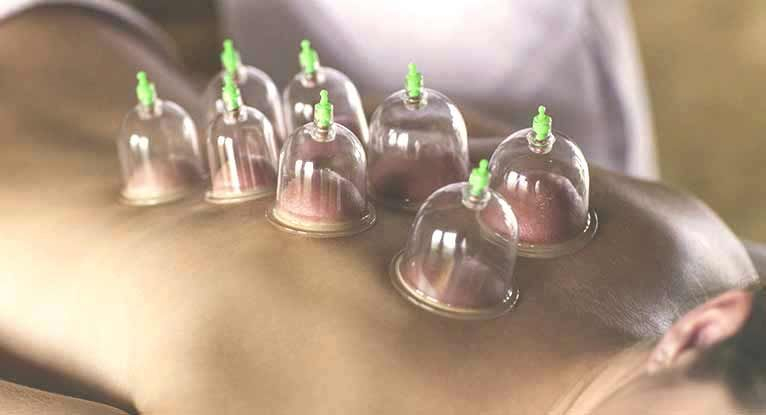 Cupping therapy to relieve congestion and release tension