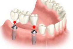 Implant, implants, implant hybrid, missing tooth, missing teeth, partials