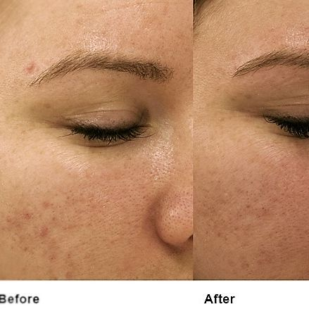 Microneedling results