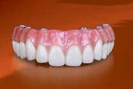 Implant, implants, All on 4, Allon 5, All on 6, implant Hybrid, denture, denture implant