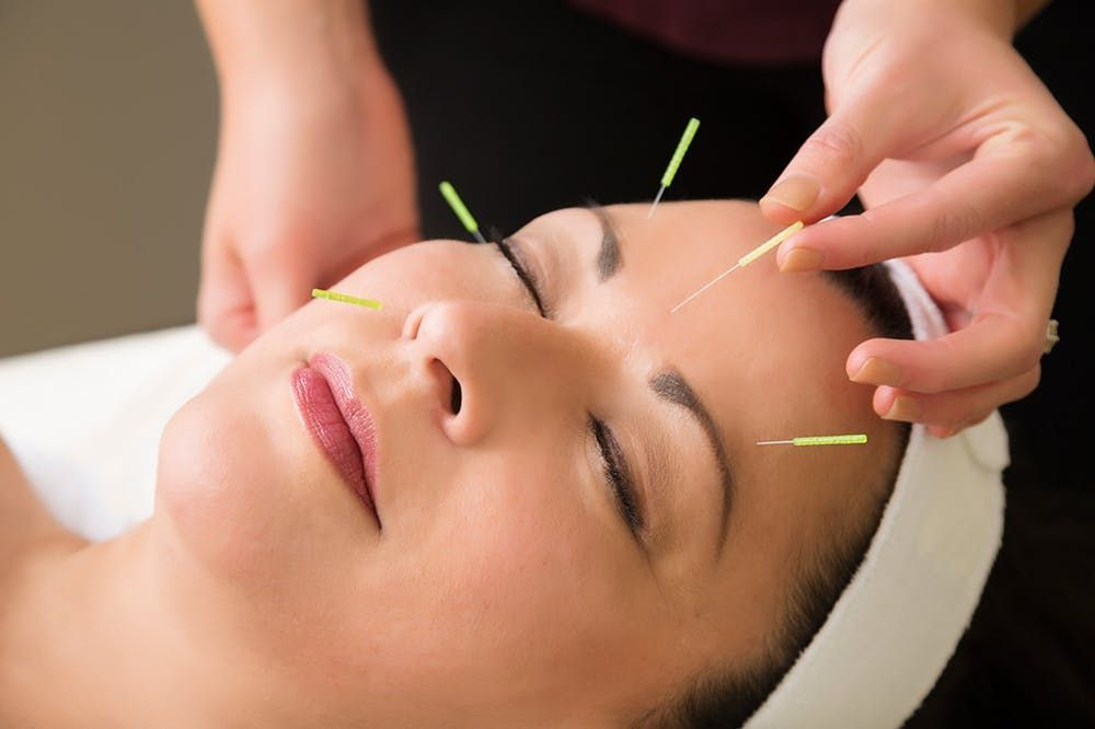 facial acupuncture younger skin treatment