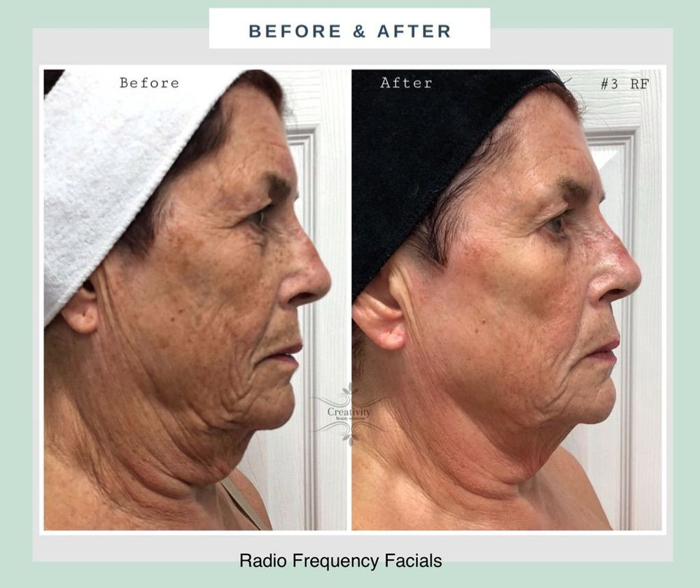 Radio frequency facial, skin tightening, anti-ageing