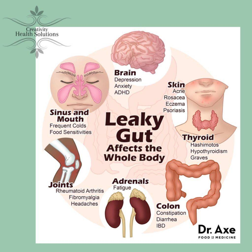 leaky gut, gut health, microbiome, synergy supplements