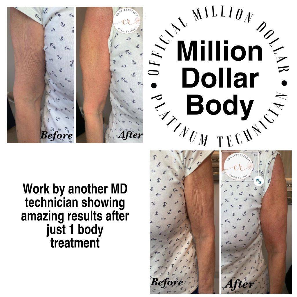 Million Dollar Body, skin Needling, skin tightening