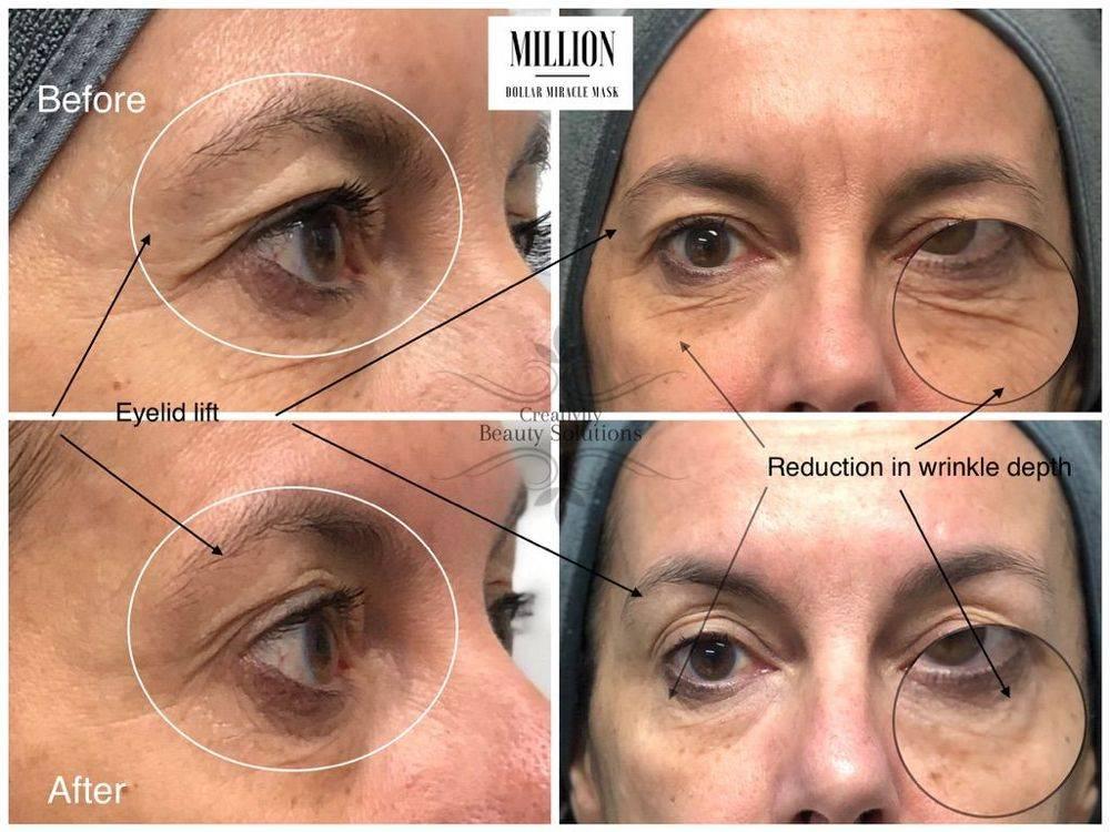 Million Dollar Miracle Mask , Facial, Red Carpet,