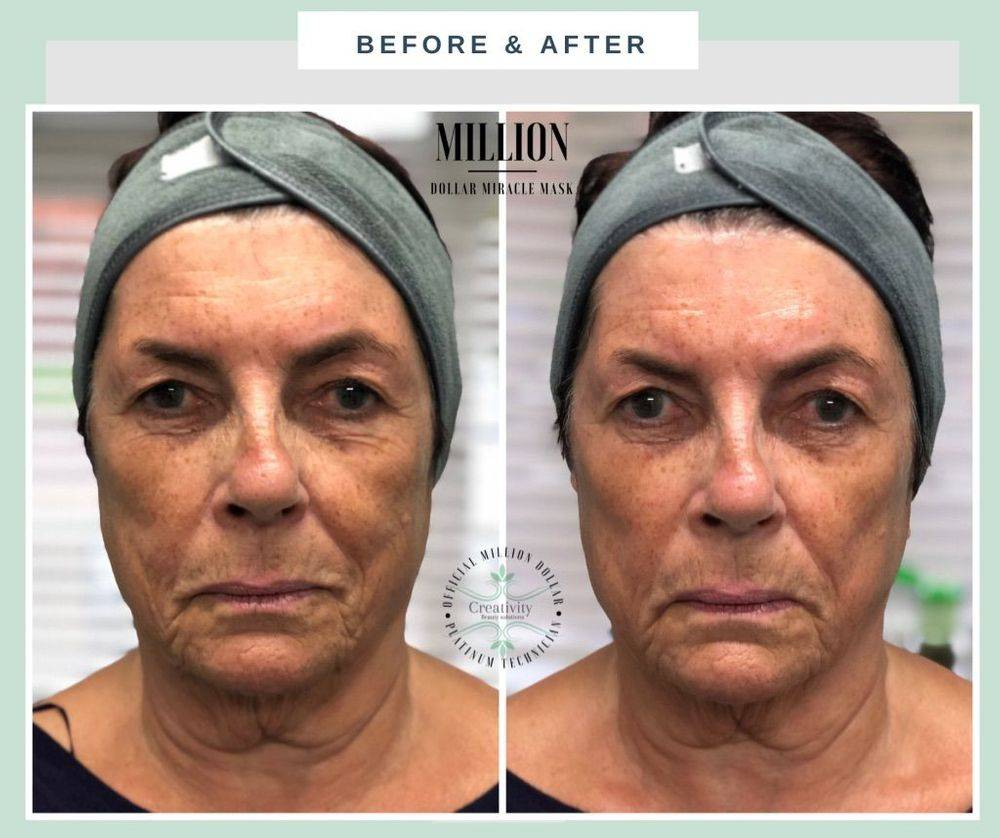 Million Dollar miracle mask, facial, skin tightening, lift