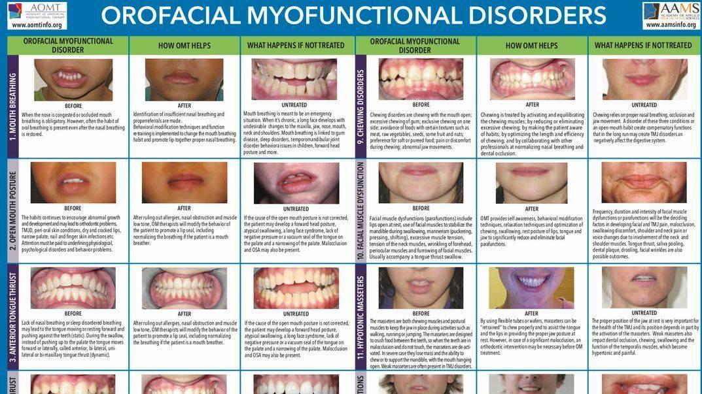 Orofacial Myofunctional Disorders photos