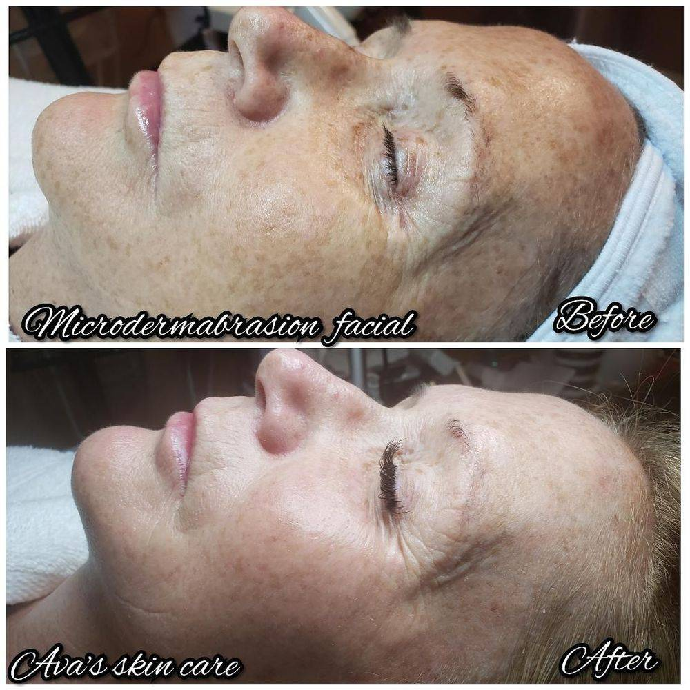 Microdermabrasion Facial By Ava
