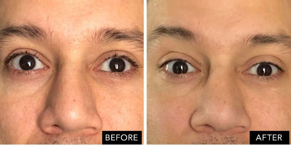 Stem cell rejuvenation anti aging wrinkle reductuion