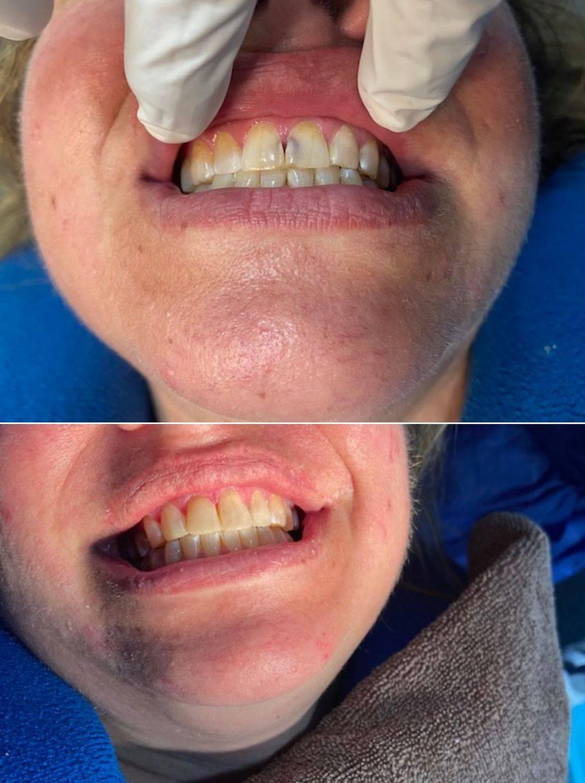 English speaking Dentist Mazatlan