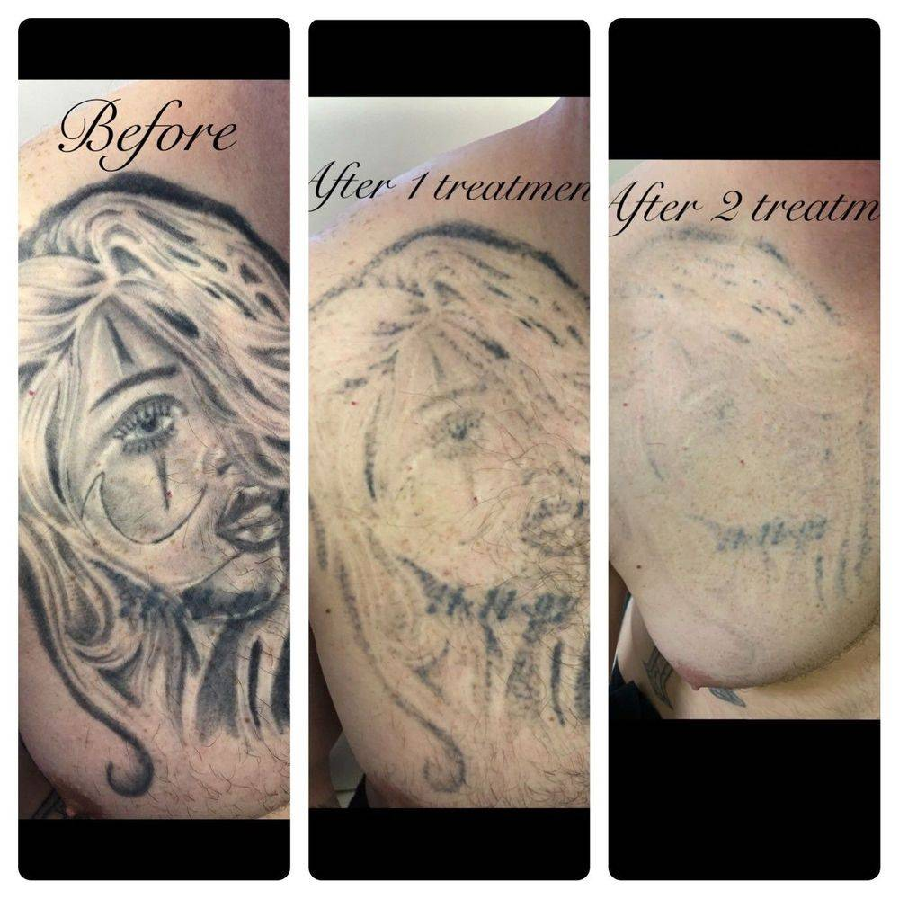Tattoo removal in Nottingham
