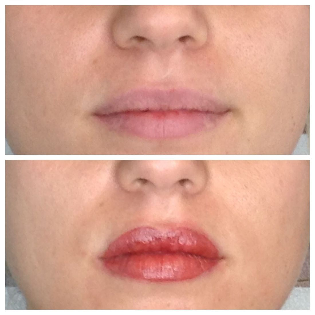 lips, lip liner, full lip color, two tone lips, fillers
