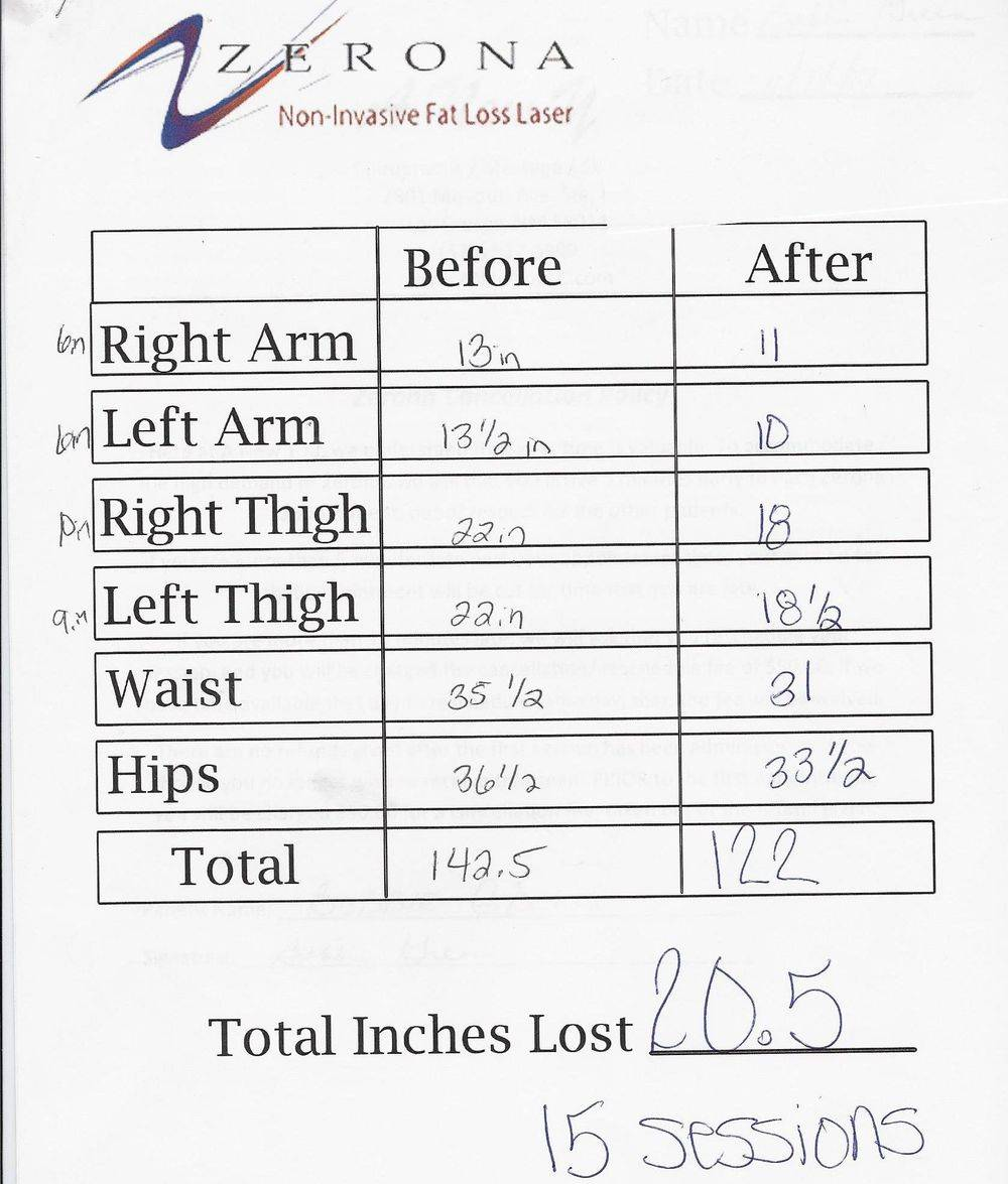 Better than Coolsculpting (tm) & better than lipo. Faster results.