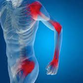 Exercise Specialist for Rheumatism Arthritis in Plymouth, Devon