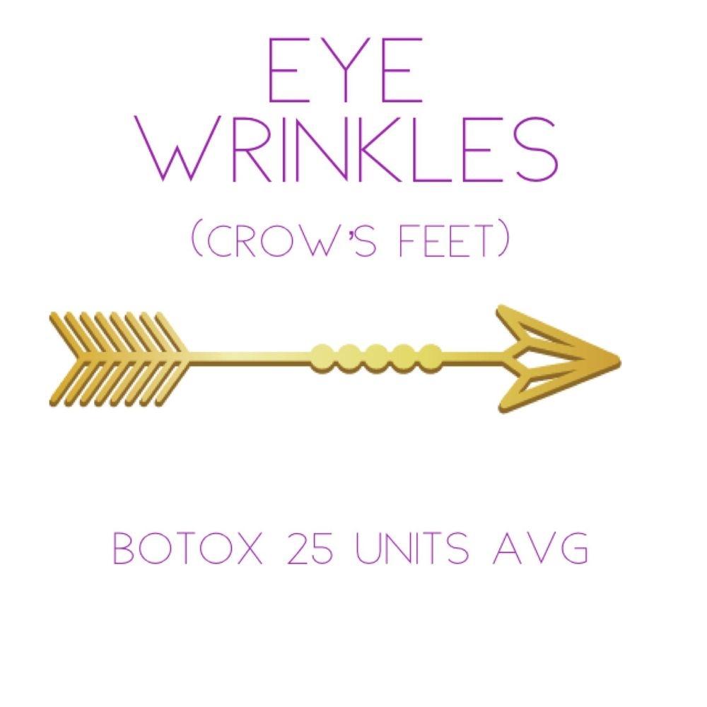 eye wrinkles botox
