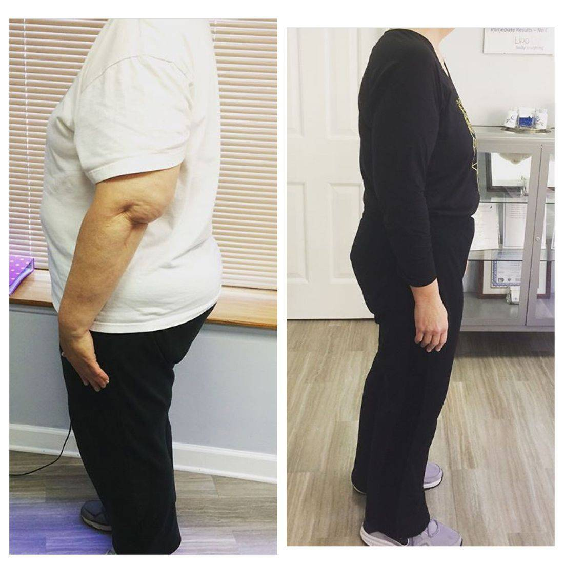 3 Months on Candida Cleanse, down 98 pounds