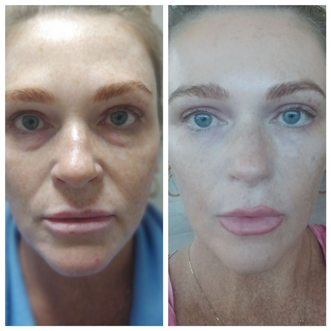 Under Eye Cannula Filler