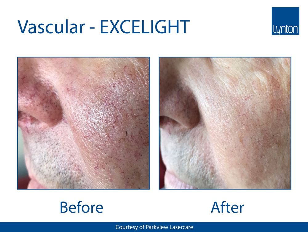 anti-oxidants, free radicals, skin treatment, Nimue, derma-cosmeceutical, skincare