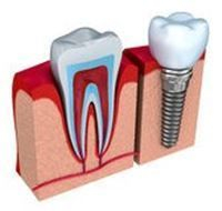 Dental Implants  Replace that missing tooth