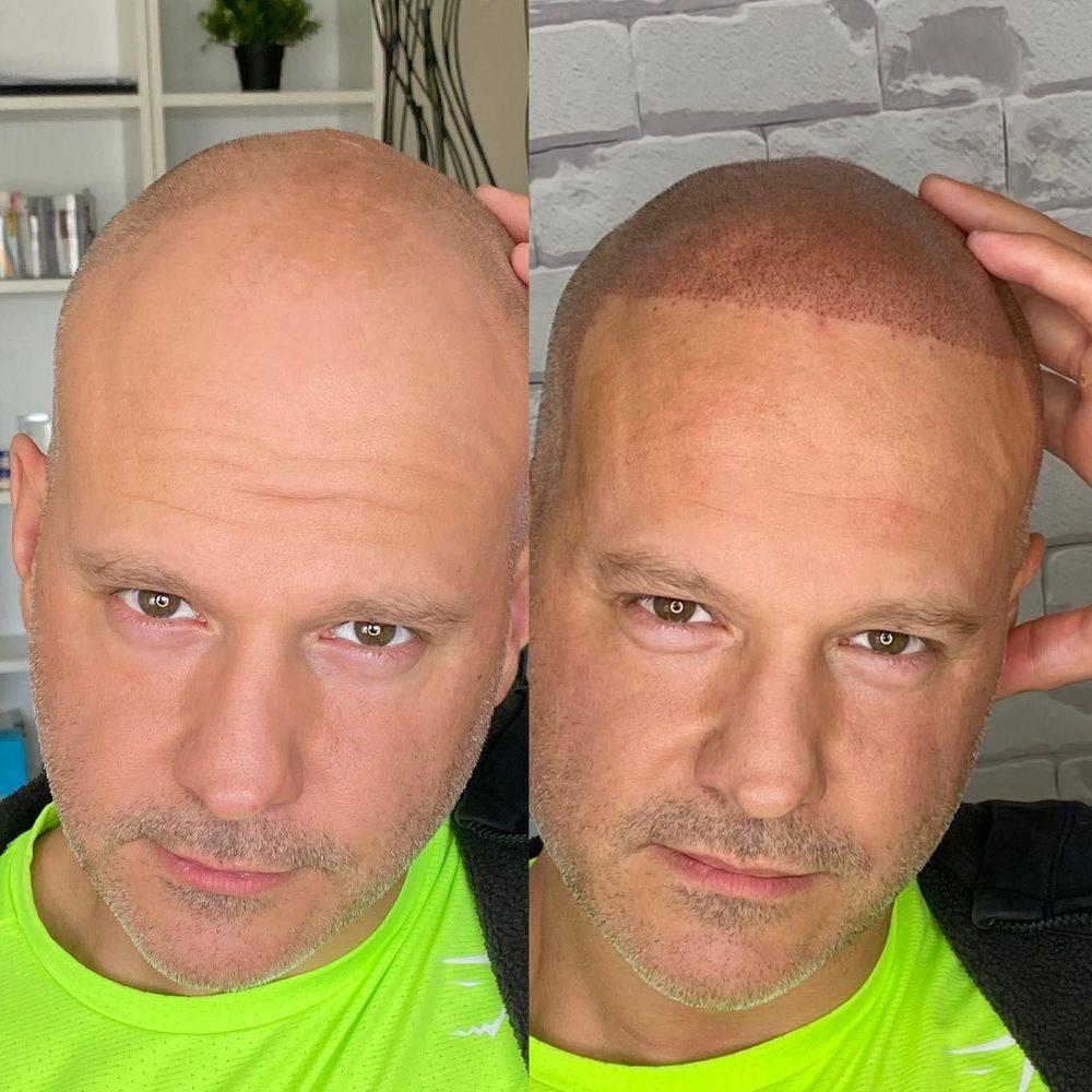 Micropigmentation for receding hairline Edmonton