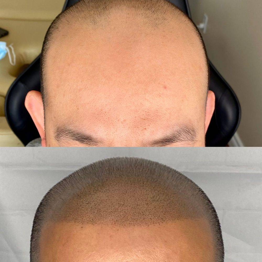 Hairline Tattoo smp Scalp pigment