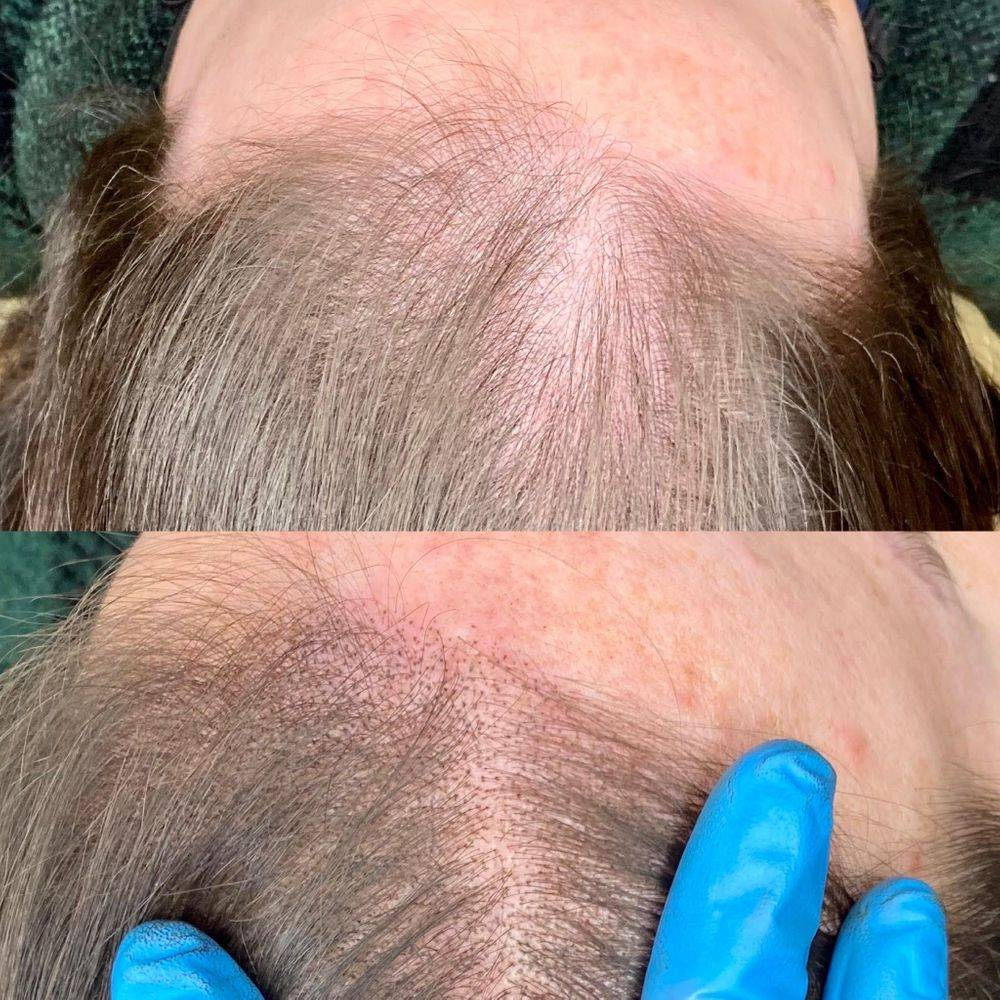 Scalp Tattoo for thinning hair