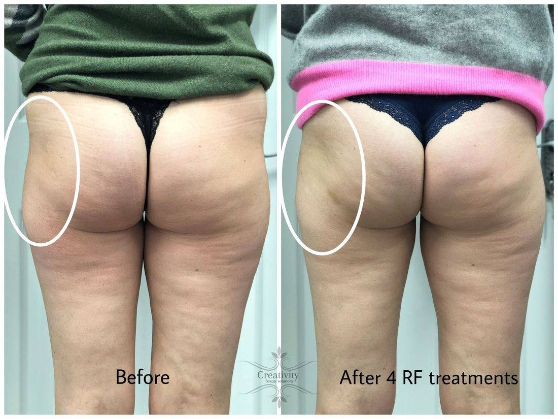 body sculpting contouring radio frequency prosculpt Butt Lift