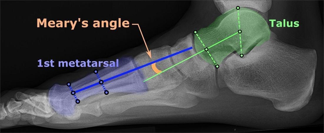 foot bones, foot conditions