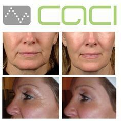 Caci Non-Surgical Face Lift in Marlow