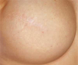 before areola