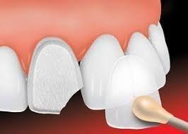 Dental Veneers Mazatlan Mexico