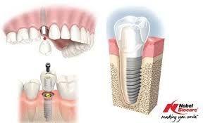 Dental Implants Mazatlan Mexico