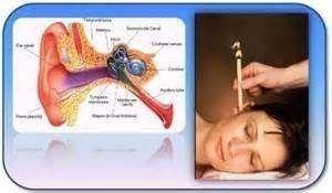 ear candling ear wax tinnitus ringing in ears