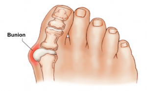 Image of a foot with bunions