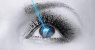 Laser Eye Surgery Mazatlan Mexico