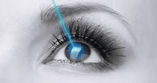 Laser Eye Surgery Mazatlan Mexico