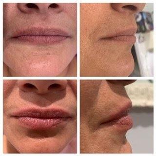 lipsrejuvination.JPG