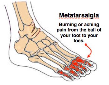 Diagram of a foots metatarsalgia