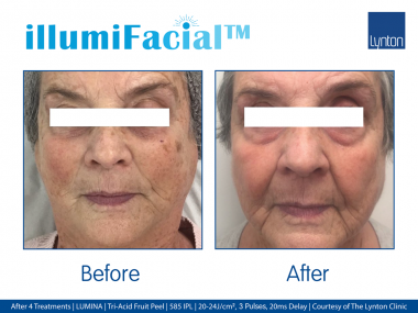 illuifacial, non-surgical, facelift, collagen, collagen induction, Lynton Lasers