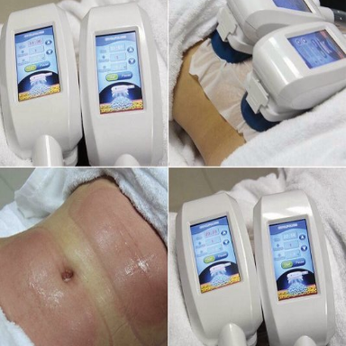 Fat freezing body treatment