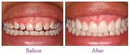Dental Veneers Mazatlan Mexico