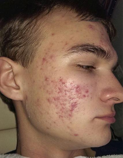 grade 4 acne