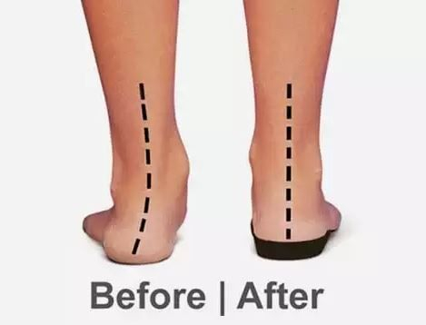 image of feet before and after wearing orthotics