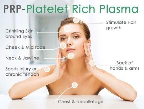 PRP facial rejuvenation decrease facial lines