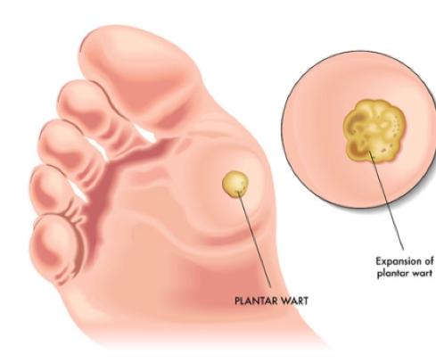 Image of a plantars wart