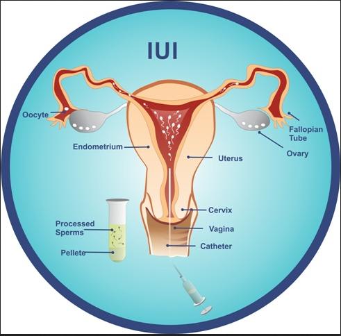 In Vitro Fertilization IVF Mazatlan Mexico