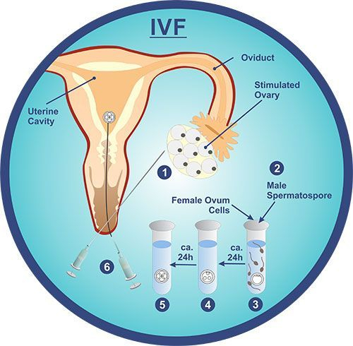 In Vitro Fertilization IVF Mazatlan Mexico