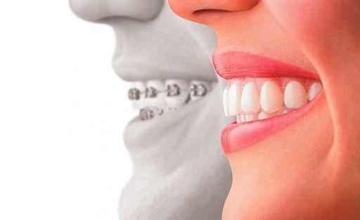 Allineatori dentali