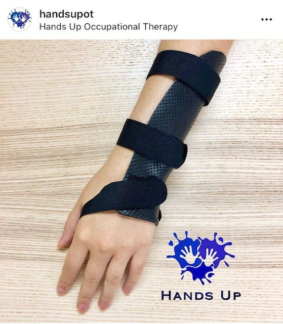 TFCC Injury Hand Therapy