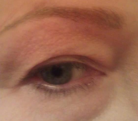 Eyebrow after  6 wks